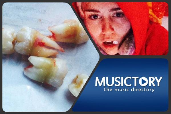 Miley Cyrus shock: si fa togliere i denti del giudizio e li posta su Instagram